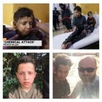 Kimyasal saldırı görüntülerinde yer alan Suriyeli çocuk: Yiyecek için çekime katıldım